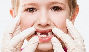 Nelžete dítěti před návštěvou zubaře. Aslibte mu odměnu, říká lékařka