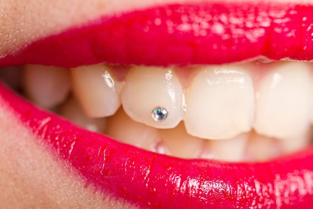 Zubní šperky a ozdoby