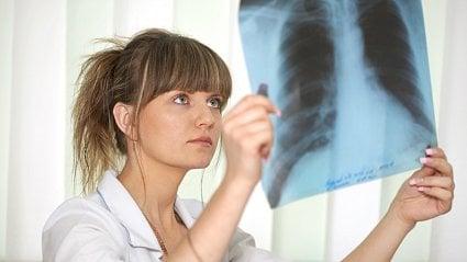 Vitalia.cz: Tuberkulóza se nemusí ohlásit kašlem a únavou