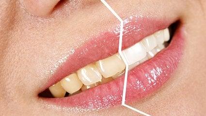 Vitalia.cz: Jak ze žlutých udělat bílé zuby