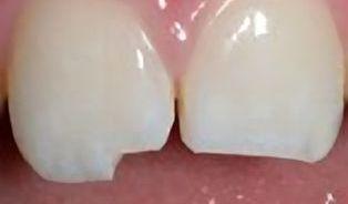 Vyražený zub hoďte do mléka a rychle kzubaři