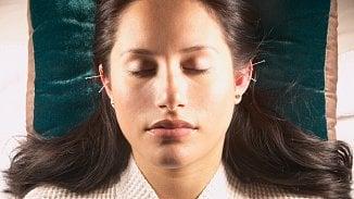 Akupunktura vychází zčínské medicíny. Proto jehly nejčastěji míří doucha