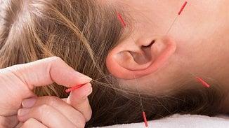 120na80.cz: Akupunktura: jak hluboko, jak často, jak dlouho?