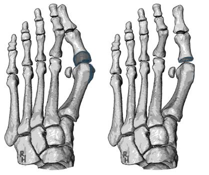 Operace dle Kellera, odstranění kloubní plochy základního článku palce. Zákrok je vhodný pro starší pacienty s nízkými pohybovými nároky.