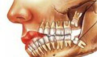 Zuby moudrosti rostou až do čtyřiceti