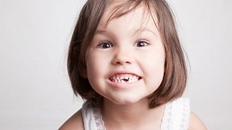 120na80.cz: Jak správně vytrhnout mléčný zub?