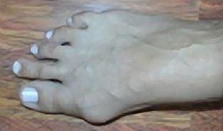 Vbočený palec je pěkná hrůza, ale nemusí být