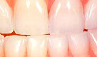 Bělení zubů není bez rizika