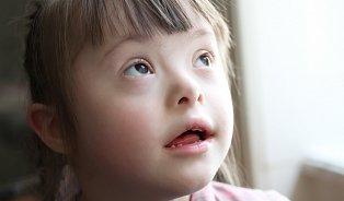 Screening Downova syndromu je žádaným benefitem pojišťoven