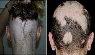 Alopecia areata: Když ztratíte iposlední vlas achlup