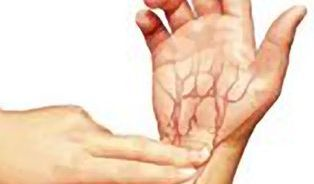 Pulsová diagnostika pozná nemoc dřív, než se projeví
