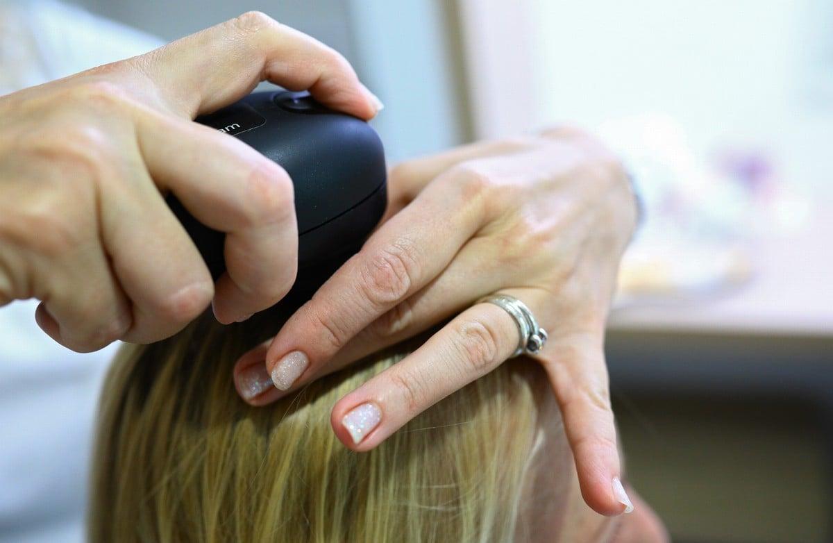 Trichologické vyšetření vlasů