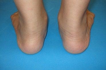 Vbočený palec je deformita nohy, která vzniká nejčastěji jako následek přetížení přednoží a vbočené nohy - tj. zatížení spíše vnitřní hrany paty než paty vnější při stoji i při chůzi
