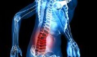 Spiraldynamik – naučí správnému používání vlastního těla?
