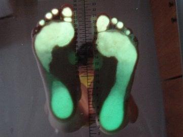 Asymetrické zatížení nohy u skoliotika