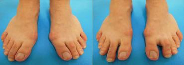 Vlevo noha bez korekce - vbočená pata, vbočený palec. Vpravo korekce paty, zde již výrazné oddálení palce od ostatních prstů