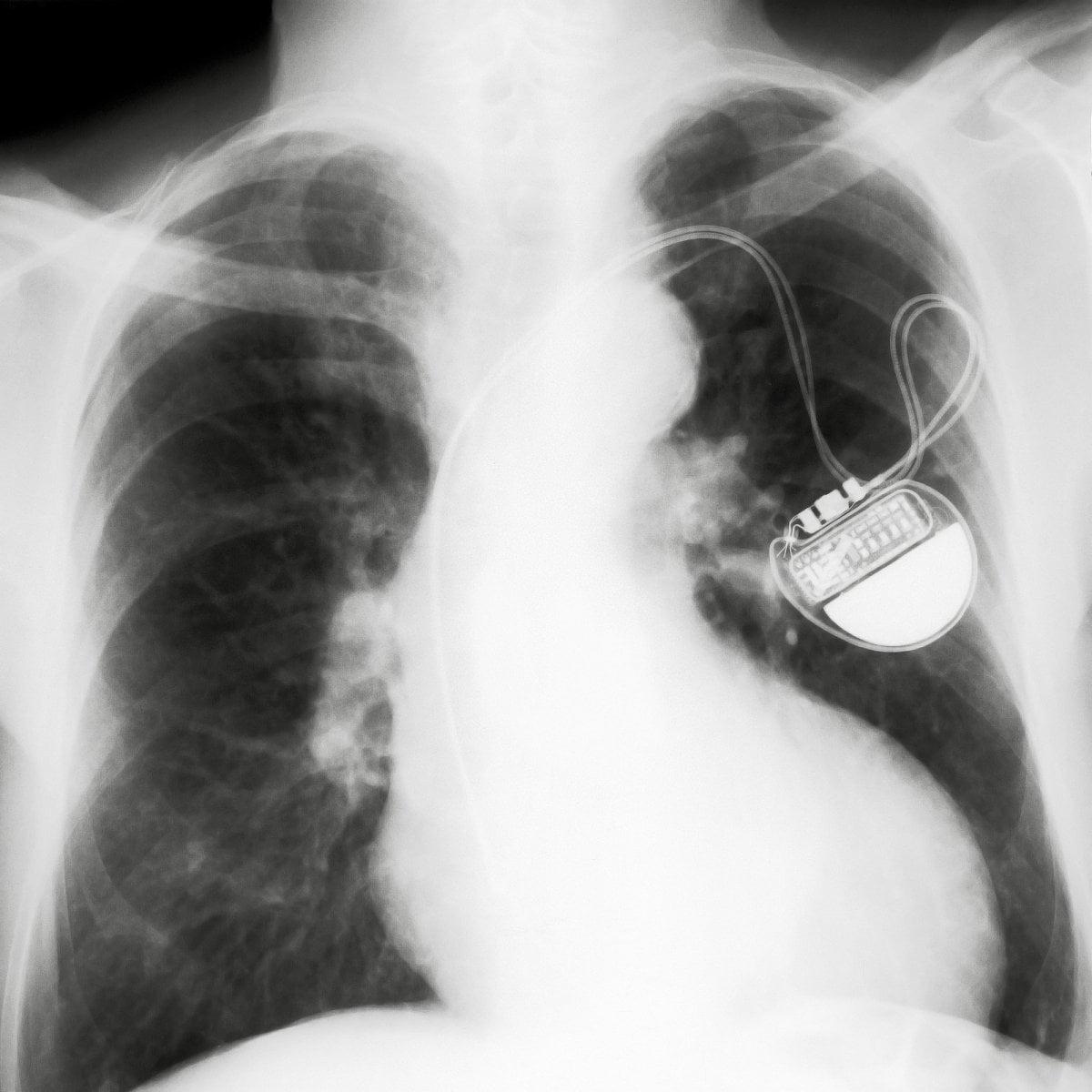 Kardiostimulátory