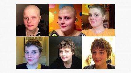 Vitalia.cz: Záhady chemoterapie: proč zrovných vlasů dělá kudrnaté?