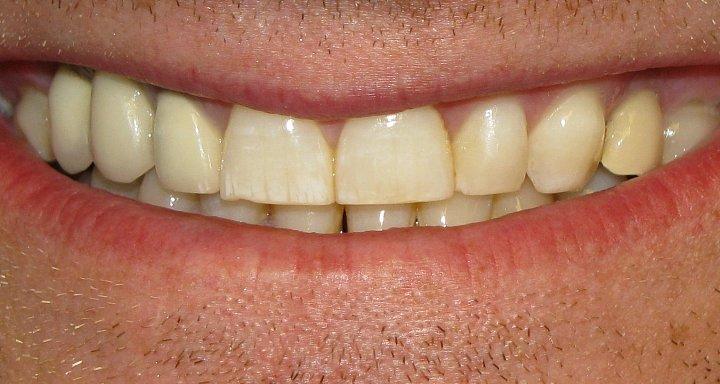 Zubní fluoróza