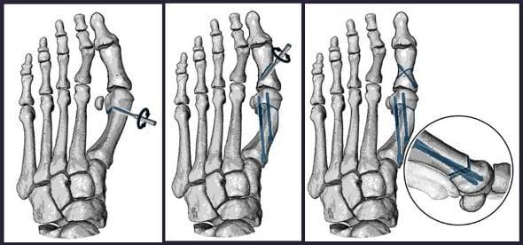 Miniinvazivní chevron Akin operace (MICA); operace protíná rotační frézou první nártní kost, po posunu v místě protnutí se fixuje nová pozice dvěma titanovými šrouby a následně se upravuje osa palce protnutím základního článku palce