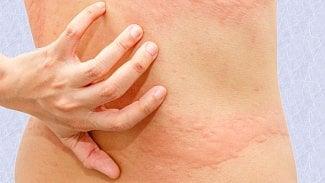 Kopřivka je vlastně alergická reakce. Co sní?