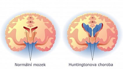 Vitalia.cz: Konečně naděje na léčbu Huntingtonovy choroby?