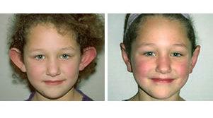Plastická operace uší