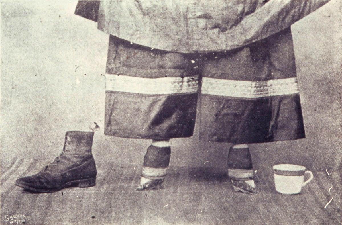 Svazování chodidel v Číně