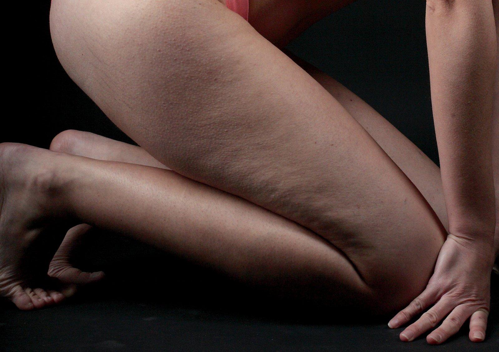 Kůži s celulitidou pomůže masážní olej
