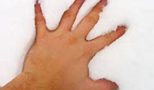 Promodralé ruce zasluhují pozornost