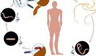 Můžou za všechno červi v našem těle?