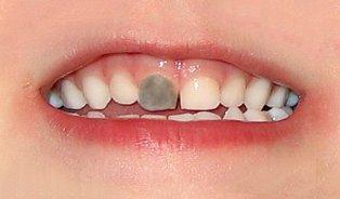 Bílý chrup, tmavý zub
