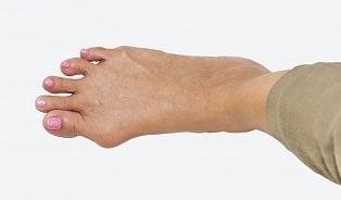 Vbočený palec není jen estetický problém