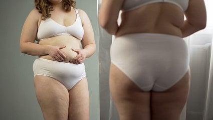 Vitalia.cz: Umí obezitu léčit ipraktický lékař?