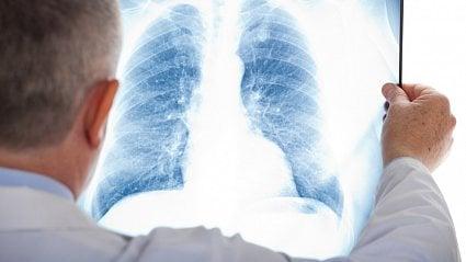 Vitalia.cz: Přežít rakovinu plic? Dříve 10měsíců, teď...