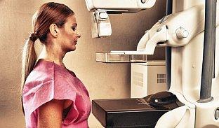 120na80.cz: Mamograf: kdo má nárok na vyšetření zdarma?