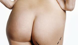Liposukce– mnohem horší než tvrdí reklama
