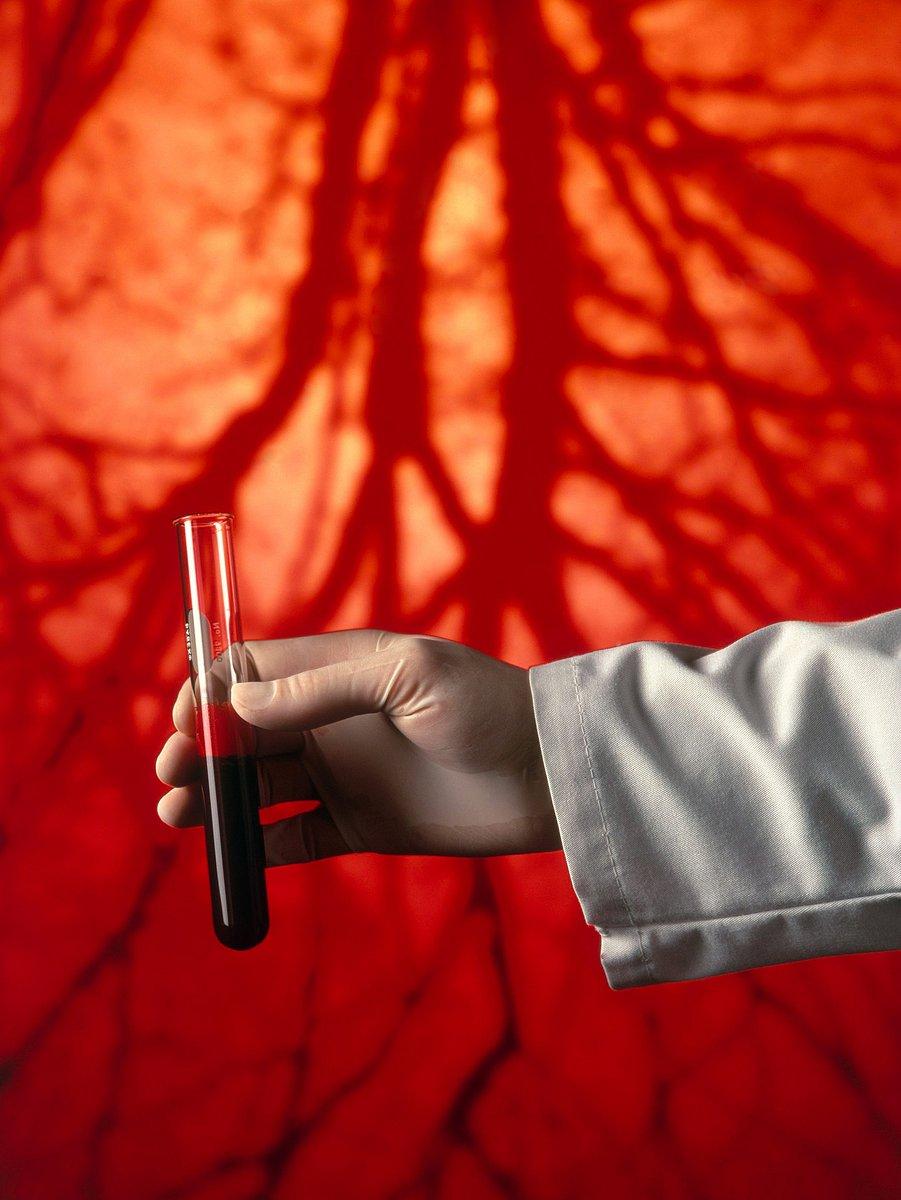 Dárcovství krevní plazmy