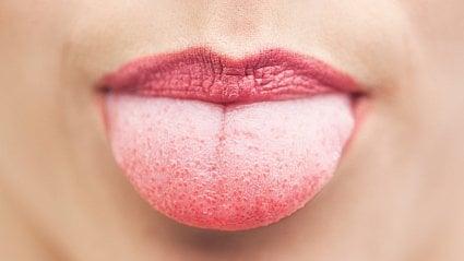 Vitalia.cz: Proč máme na jazyku bílý povlak?