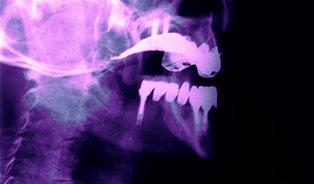 Zubaři okradli pojištovnu na plombách o2,4miliónu