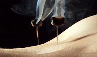 Řadě kolegů jsem akupunkturou pomohl, říká lékař