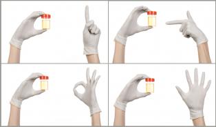Pravidla pro správný odběr moči: chybuje se nejen při menstruaci