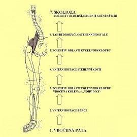 Propojení nohy a trupového skeletu. Přepracováno z materiálů firmy Formthotics