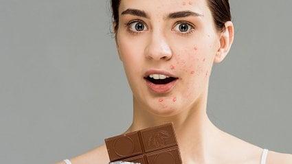 Vitalia.cz: Jak zlepšit akné pomocí stravy