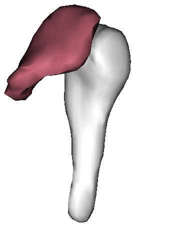 3D modely čelistního kloubu