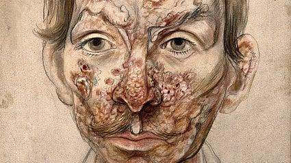 Vitalia.cz: Syfilis: nemoc, ukteré ilékaři trnuli hrůzou