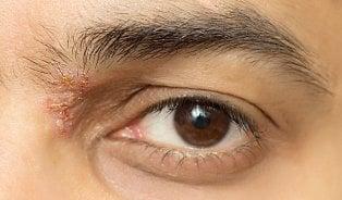 Oční alergie a pásový opar voku