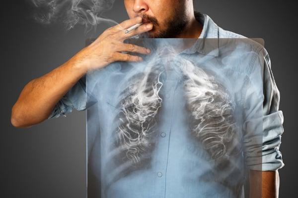 Rakovina plic v ranném stádiu probíhá většinou bez příznaků. Později přichází kašel, vykašlávání krve a chrapot. Příznakem pokročilejšího onemocnění je pak dušnost, nechutenství a úbytek hmotnosti. Rostoucí nádor se později projevuje bolestí na hrudi.