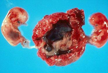 Početí za pomoci umělého oplodnění je dnes nejčastější cesta ke dvojčatům. Tomu by měl být nově konec.