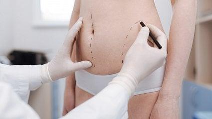 Vitalia.cz: Liposukcí neshodíte kila ani pivní břicho